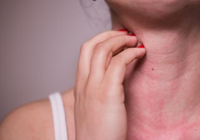 Allergies skin